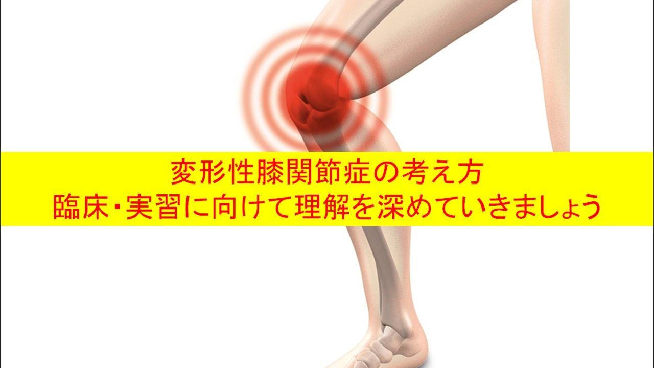 変形性膝関節症の考え方