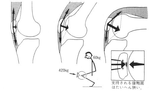 膝屈曲に伴う膝蓋骨接触圧