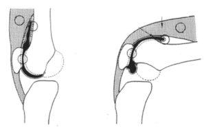 Extension Lagの影響に膝蓋上嚢が関与している
