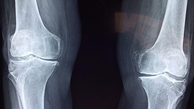 下腿過外旋症候群と他関節の影響