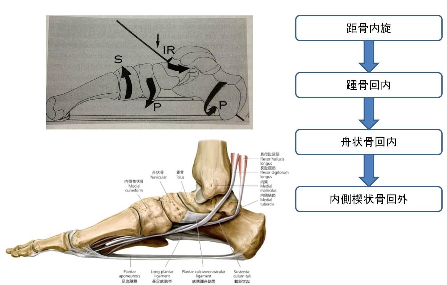 足部アーチ低下メカニズム