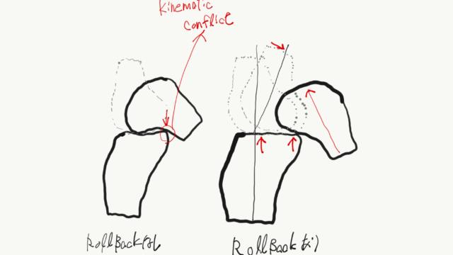 膝関節rollback